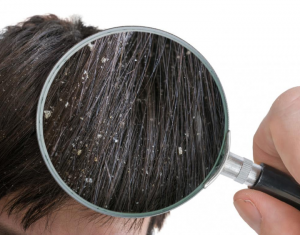Magnifying glass on hair with dandruff.