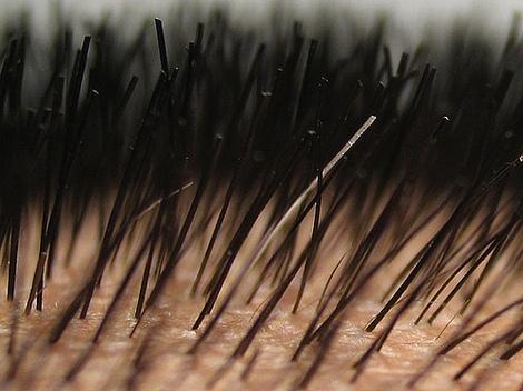 Close up on scalp.