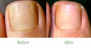 Nail with fungus and nail without fungus.