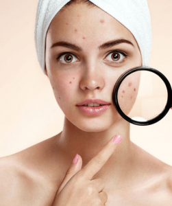 Woman pointing to and magnifying her acne.