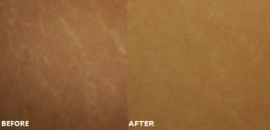 The before and after effects of dermarolling on skin.