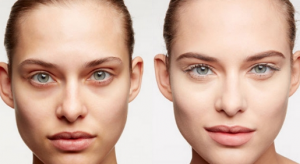 Woman with and without dark circles