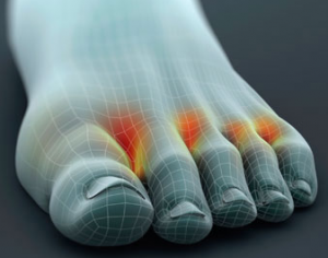 #d rendering of a foot in pain.