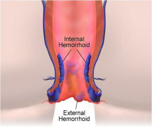 Labeled diagram of hemorrhoids.