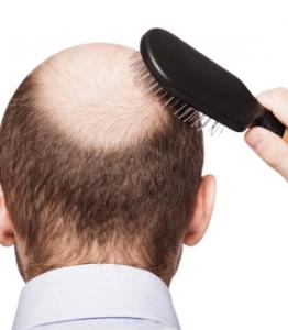 Man balding.