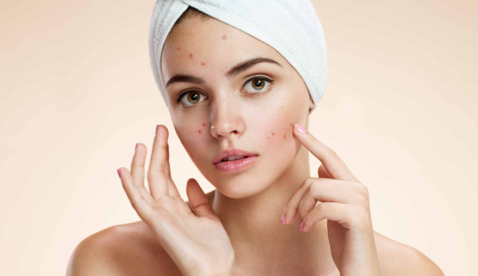 Acne in adults.