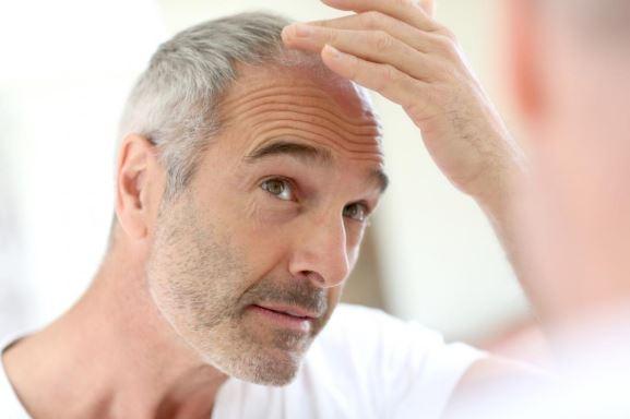 Older man examining his head.